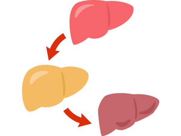 【画像】肝臓の症状